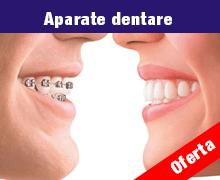 Profita acum de oferta Plusdent - Aparate dentare