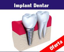 Profita acum de oferta noastra pentru Implant dentar in Pitesti